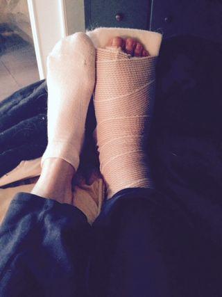 Post=surgery foot